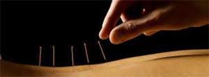 Introduction L'Acupuncture